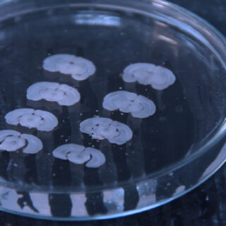 Rodent brain slices in a dish