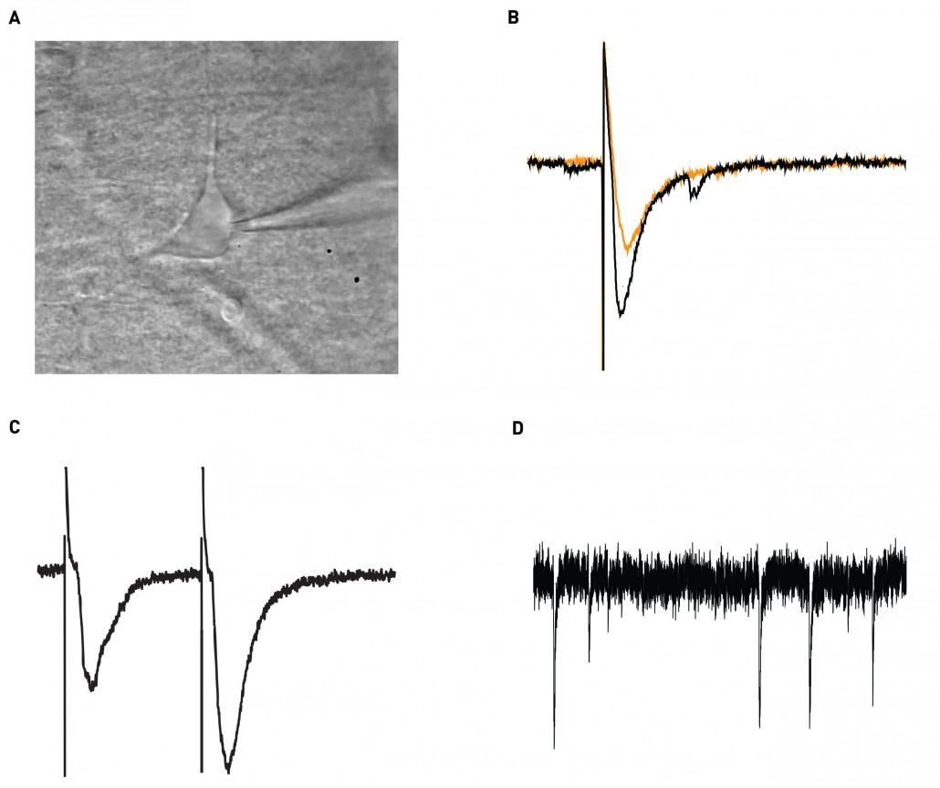 patch clamp recording CA1 interneuron