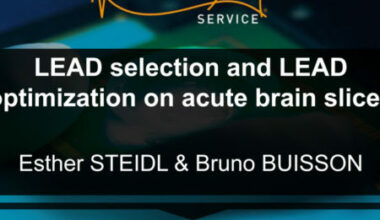 LEad selection and optimization neuroservice