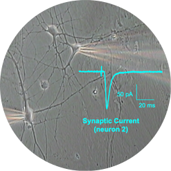 Patch clamp on rodent brain cultured cell
