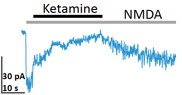 Block and relief of NMDA current by Ketamine