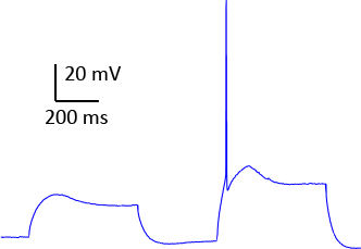 Retigabine graph 10 microM human brain slice