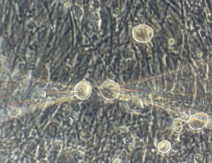 Human iPSC-derived neurons: a surrogate for native human DRG neurons